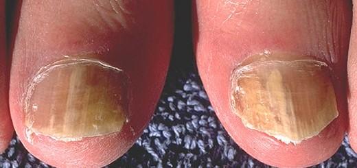 Nagelpilz ist lästig und kann mit Hausmitteln behandelt werden