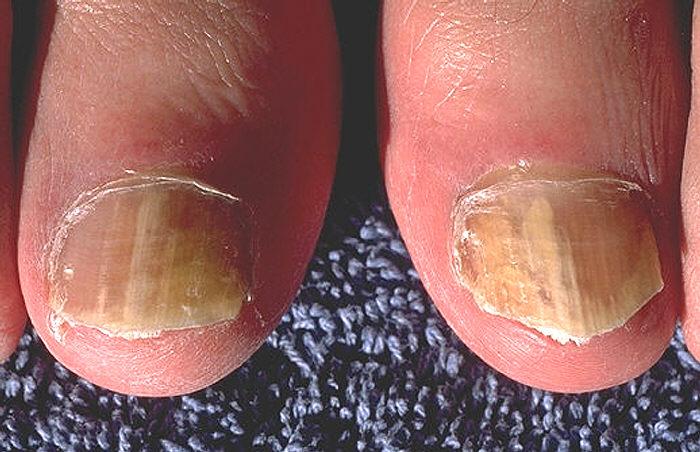 Die Beine den Finger von gribok zu befreien